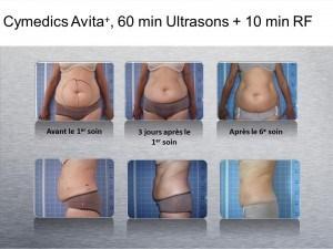 Avita+ Ultrasound